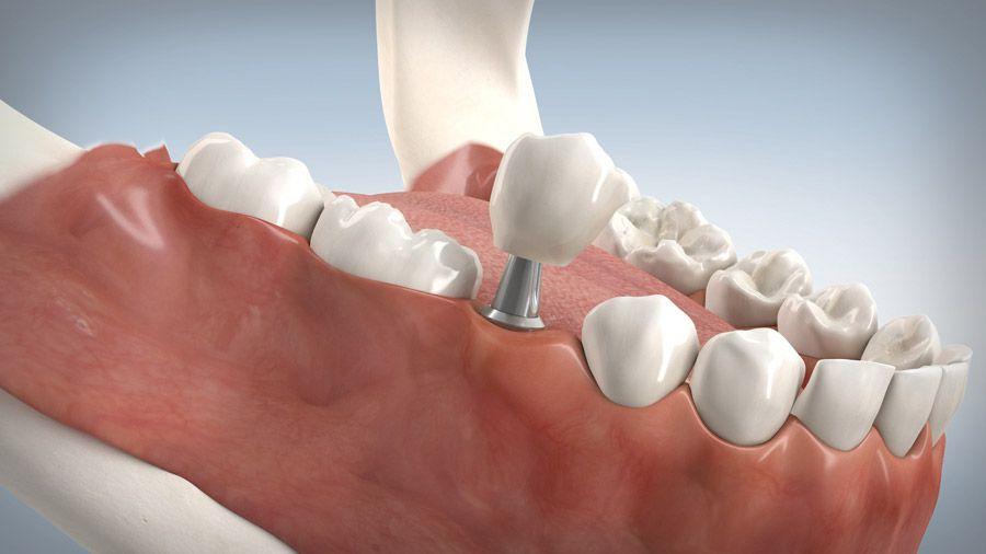 Versorgungsarten der Zahnimplantate